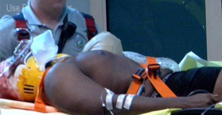 Un joueur des Dolphins de Miami perd un bras dans un accident de la route!