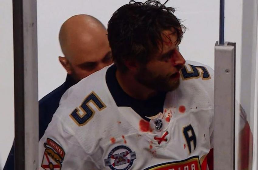 Max Domi pète les plombs dans le match face aux Panthers!